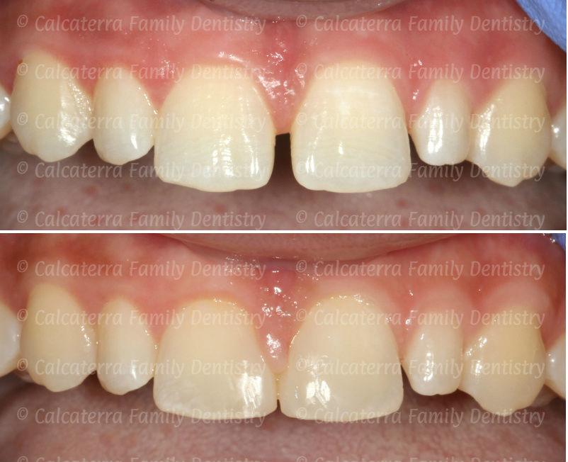 Before and after photos closing a diastema