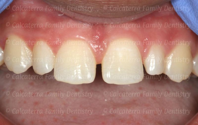 Photo showing diastema or gap between her teeth.