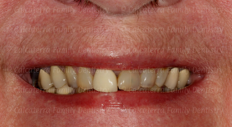 poorly matched front dental crown.
