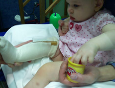 Baby with a cast