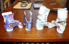 Foot orthotics on table