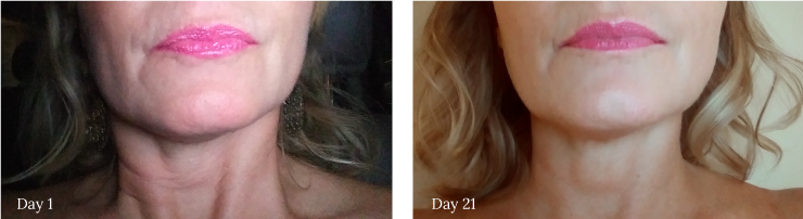 Anti-aging marine collagen face cream before and after