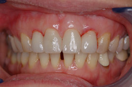AFTER - Two Veneers and Two Ceramic Crowns