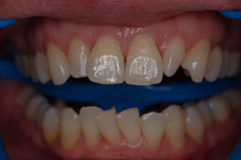 BEFORE - Small Lateral Teeth