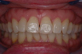 AFTER - Two Veneers