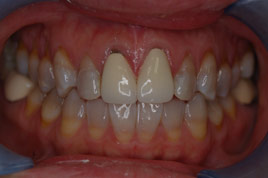 BEFORE - Two Old Metal Porcelain Crowns