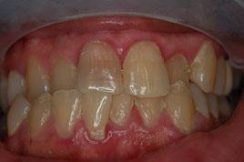 BEFORE - Stained and Short Front Tooth