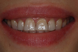 BEFORE - Uneven and Internal Stained Teeth