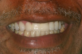 AFTER - Veneers, Bridges and Crowns