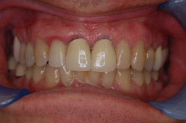 BEFORE - Old Metal Porcelain Crowns