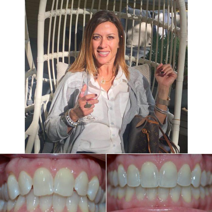 orthodontist near me lafayette la abbeville la breaux bridge la