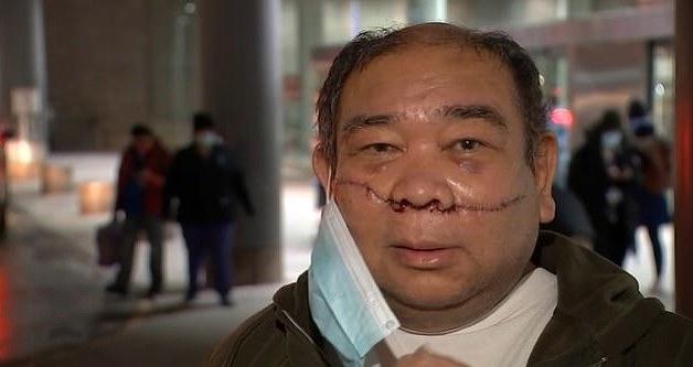 菲利宾亚裔在纽约乘地铁时被歹徒用刀片划伤脸部