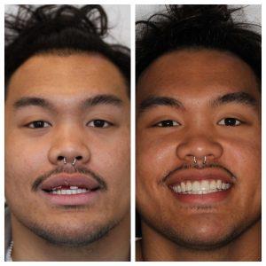 Los Angeles Dental Implant