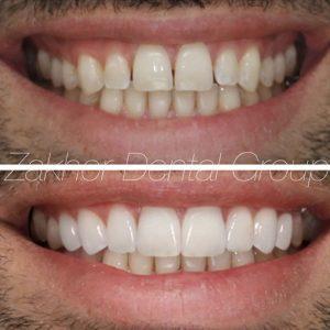 Los Angeles Best Cosmetic dentist
