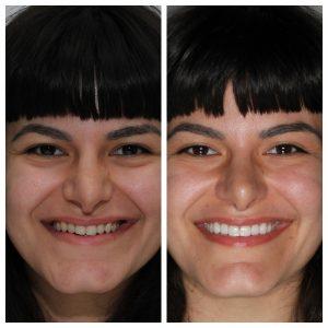 Smile makeover porcelain veneers
