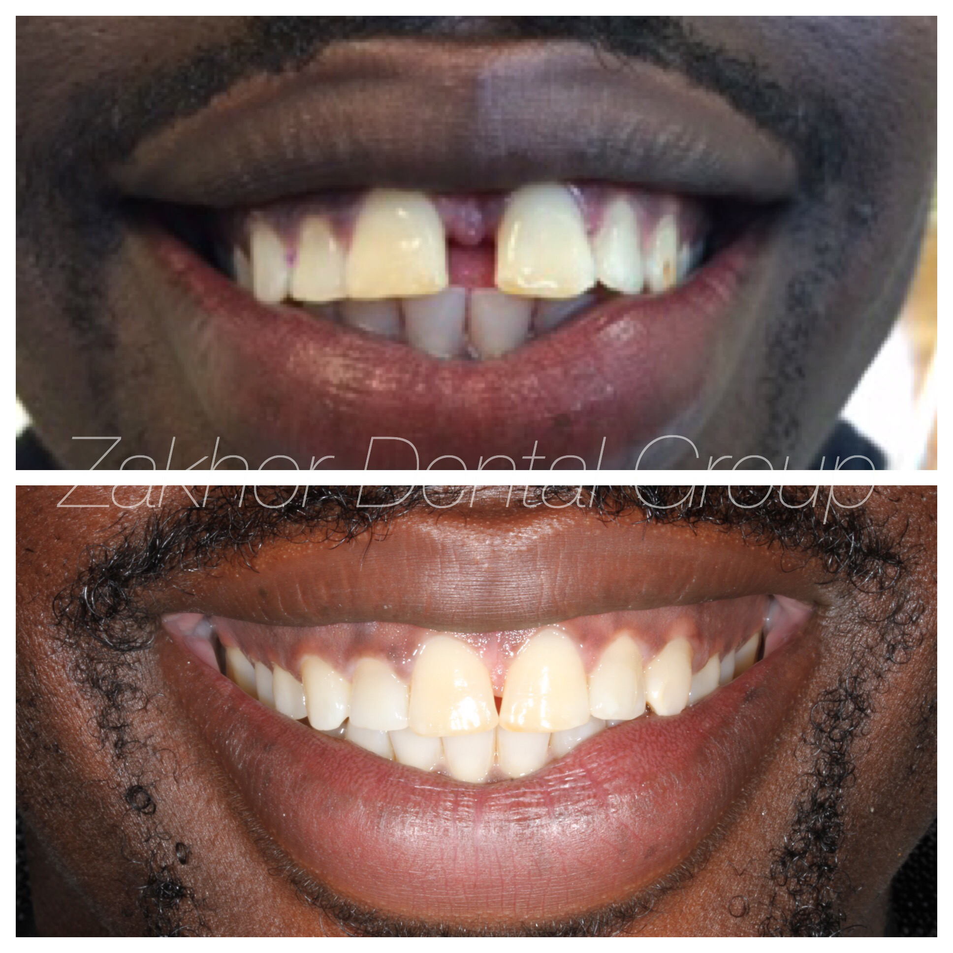Closing unwanted spaces with invisalign