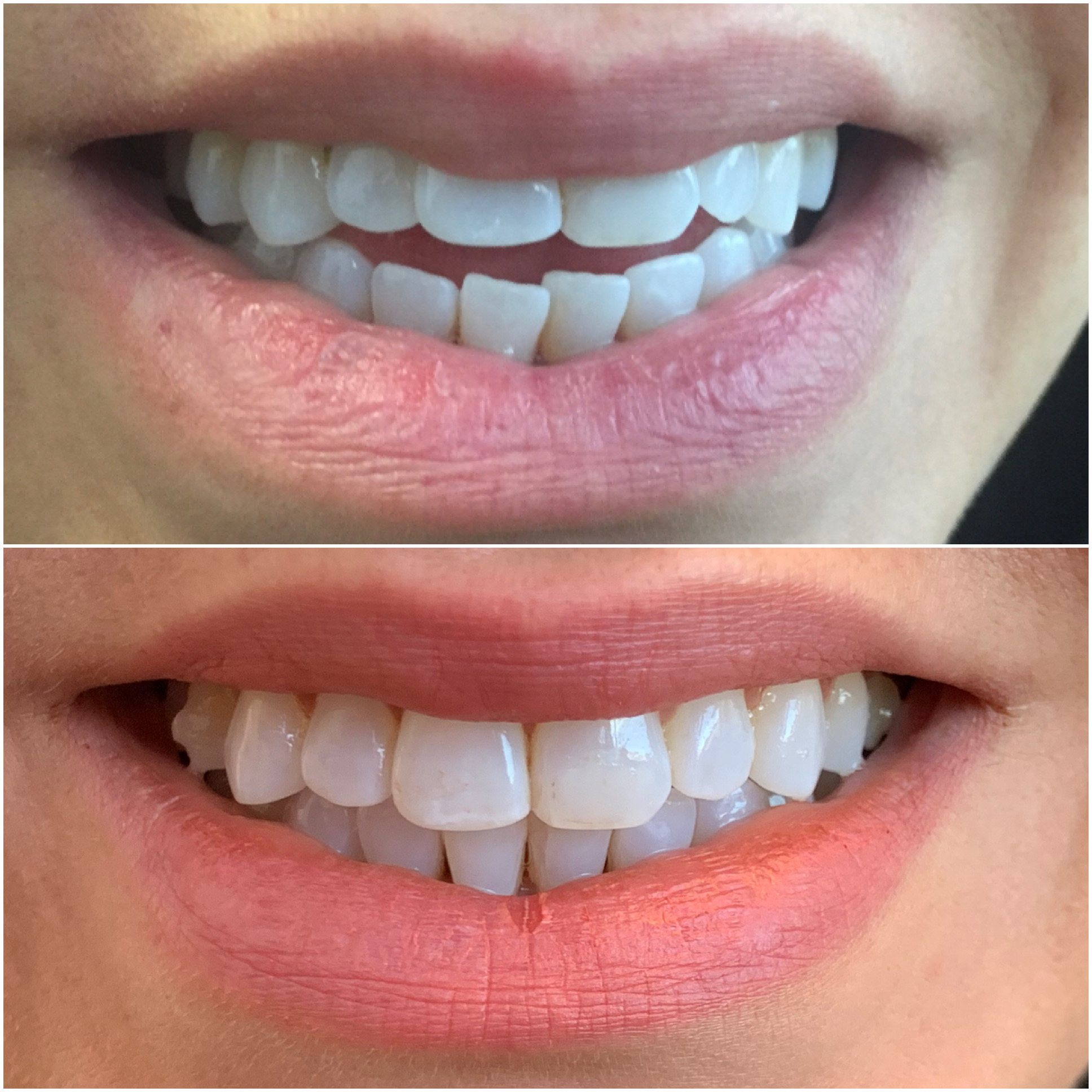 Invisalign used to close an open bite.