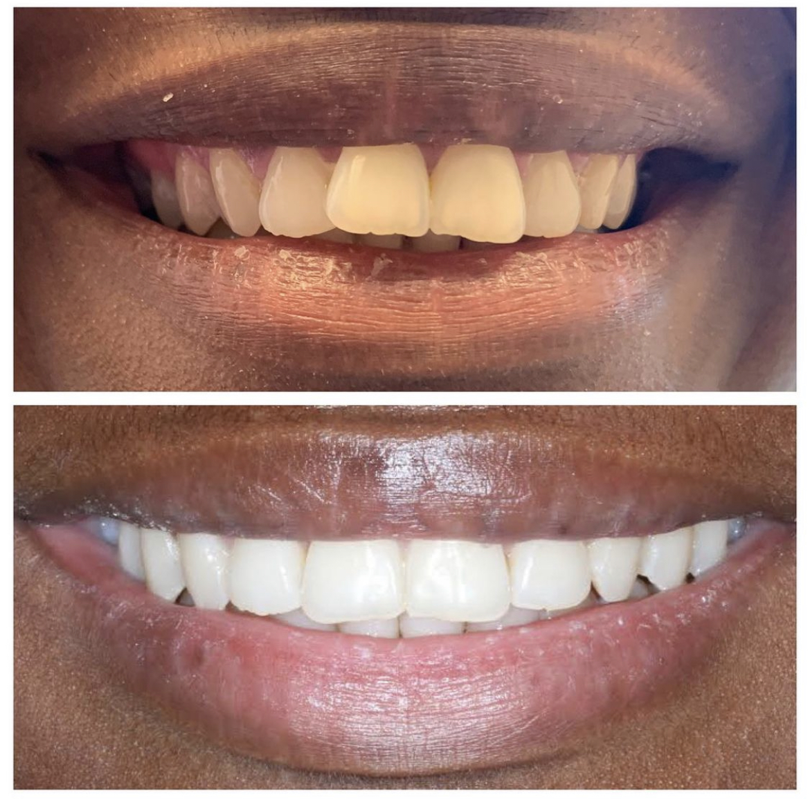 Invisalign before and after results.