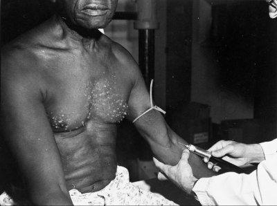 tuskegee injection