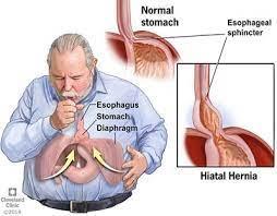 Hiatal Hernia is very disruptive.
