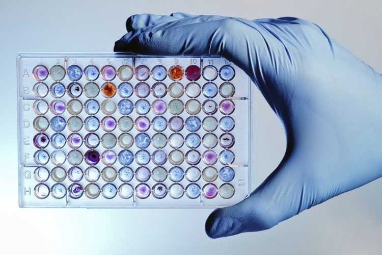 Role of DMSO in PCR