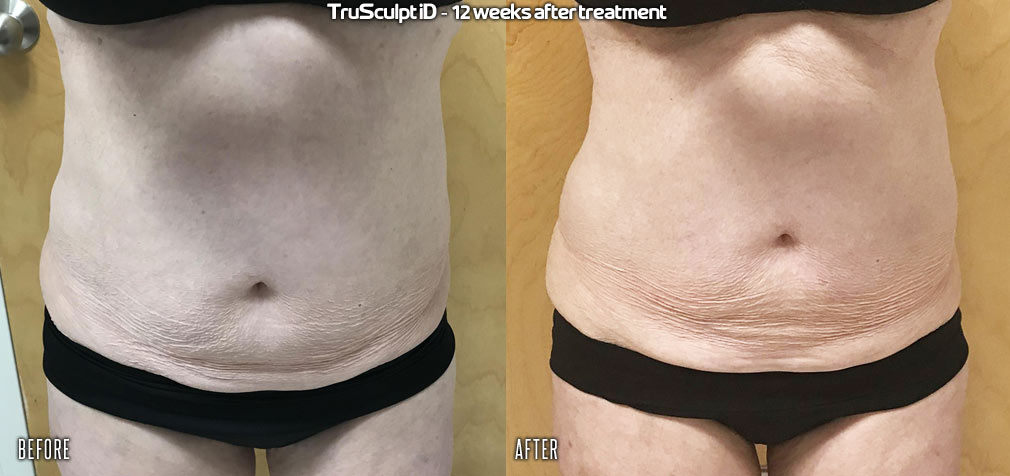 before-after-trusculpt-id-1_orig