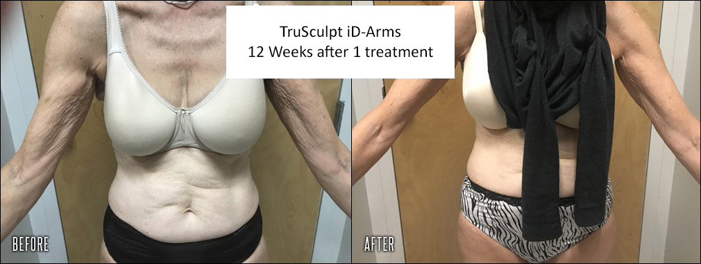 before-after-trusculpt-id-arms_orig