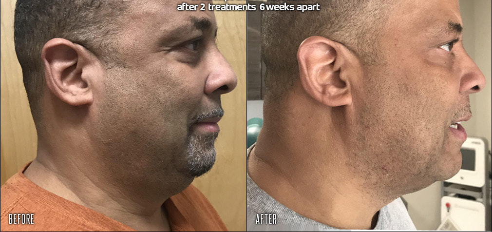 trusculpt-id-chin-before-after_orig