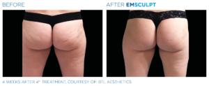 Emsculpt Buttocks 4