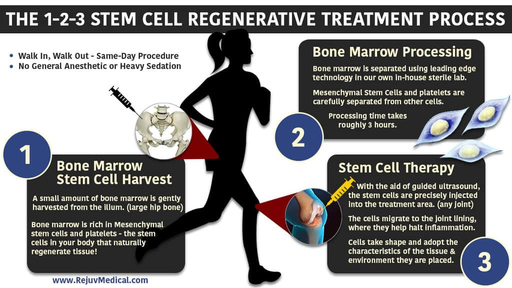 Regenerative-Stem-Cell-123-Infographic