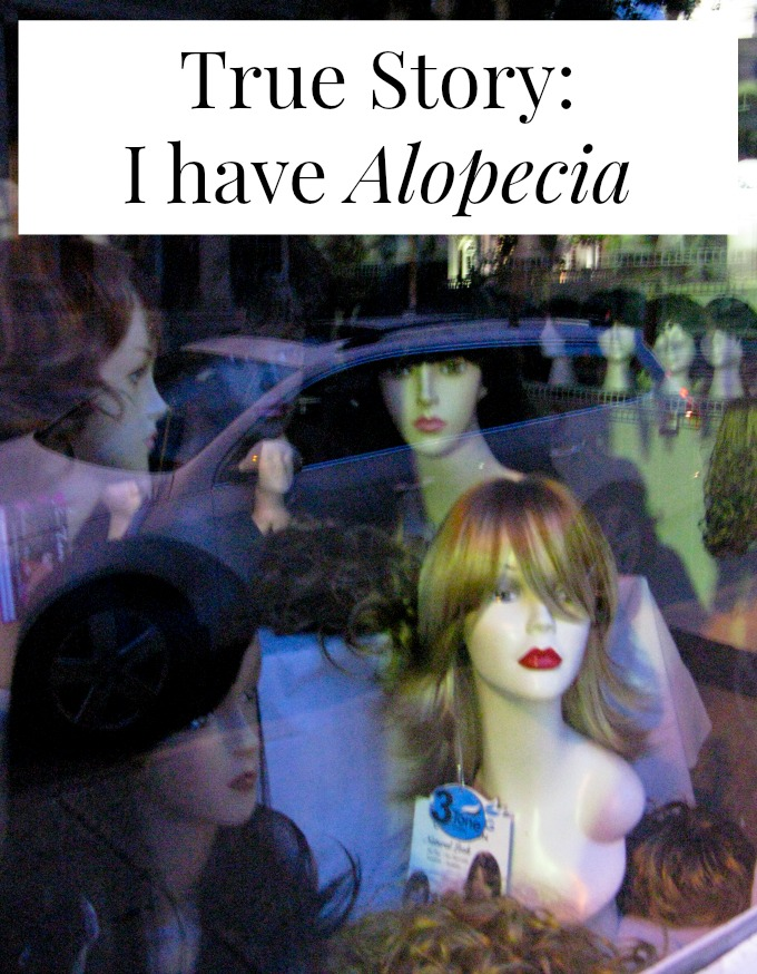 Living and experiencing through Alopecia diagnosis