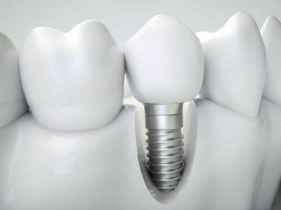 Aspen Dental Care Dental Implants