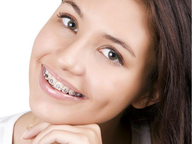 Aspen Dental Care Orthodontics