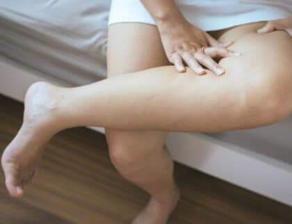 The Best Treatment Options for Varicose Veins