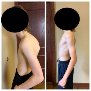 Scoliosis & Kyphosis Before and After - image 1