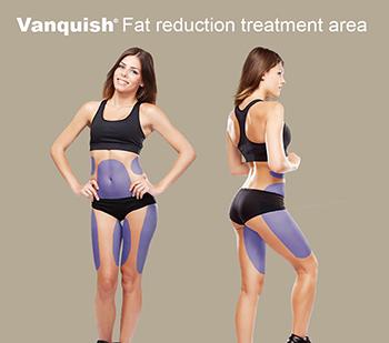 Vanquish fat removal