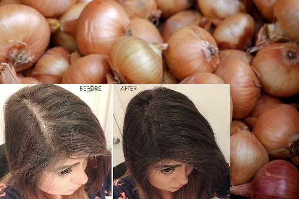 How To Use Onion Juice For Hair Growth