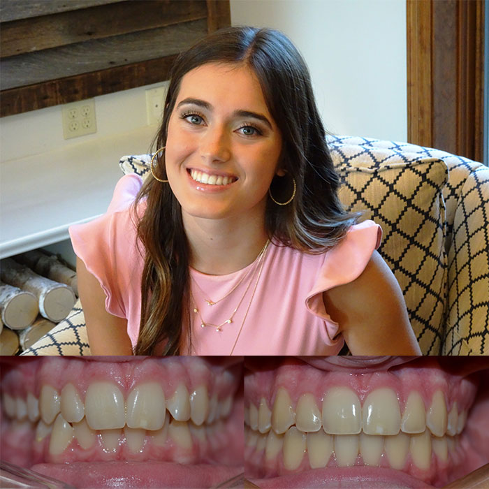 Orthodontist Lafayette LA Before and After Pictures June 2019