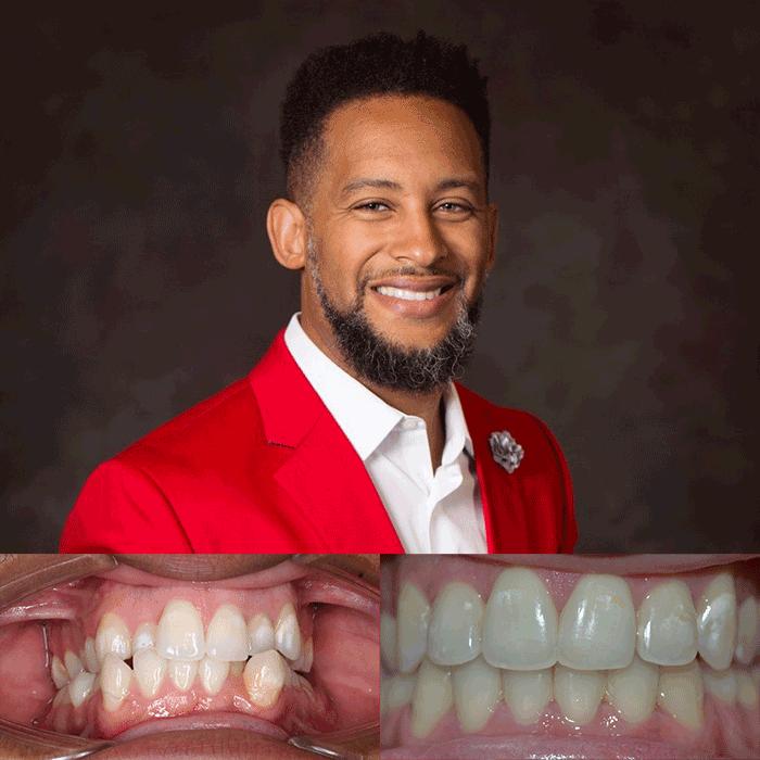 orthodontist in lafayette la