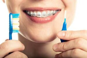 What can happen if you don't brush as directed with braces?