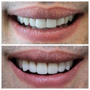porcelain veneers smile makeover