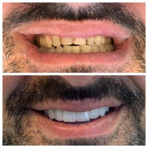 Cosemtic Dentist Near Me