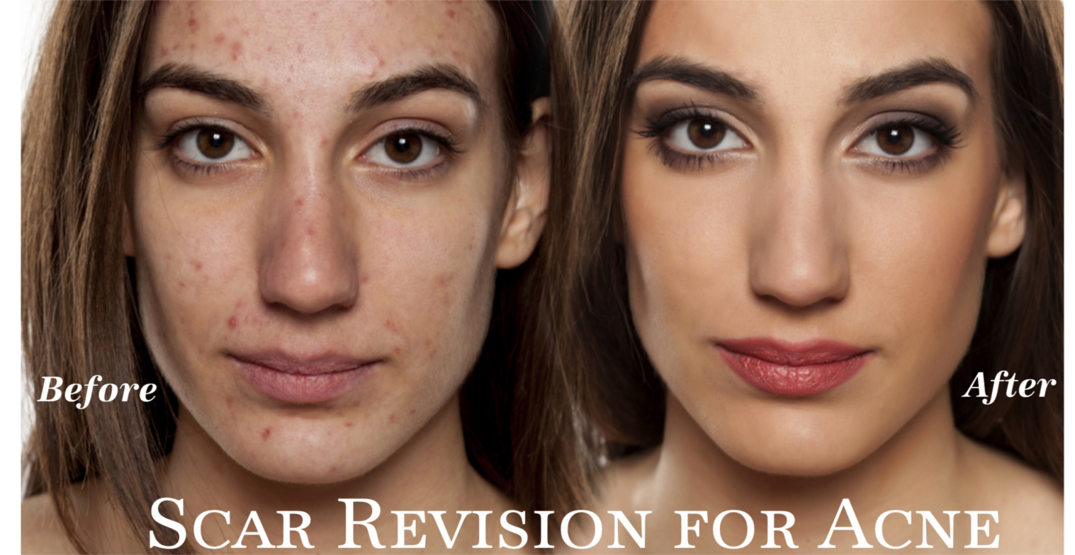 Scar Revision for Acne Scars