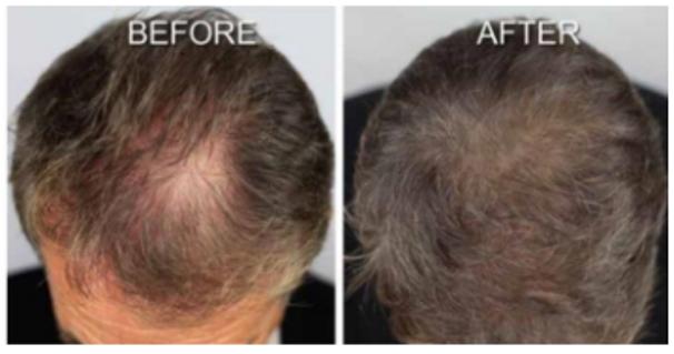 scalp pigmentation tampa