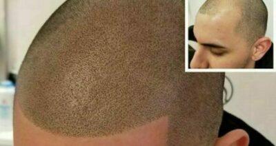 scalp micro