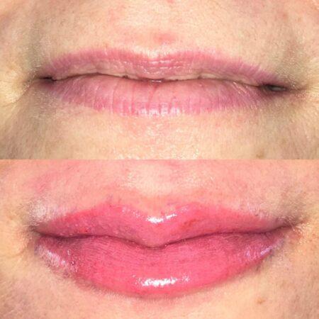 lips4