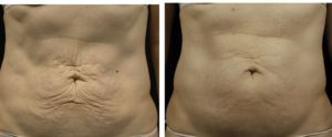 Tummy Loose skin thermage treatment before and after 6 months post.