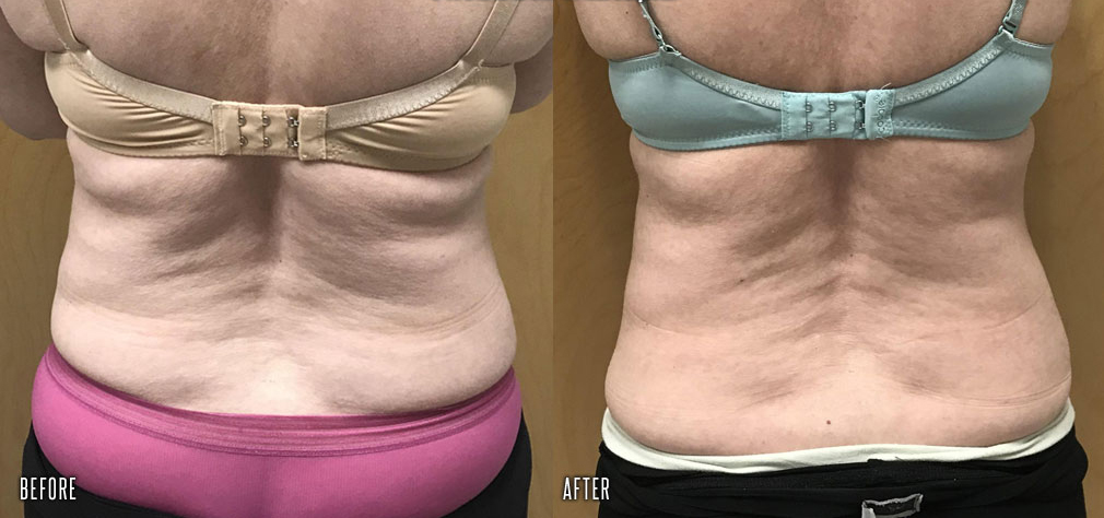 before-after-trusculpt-id-3_orig