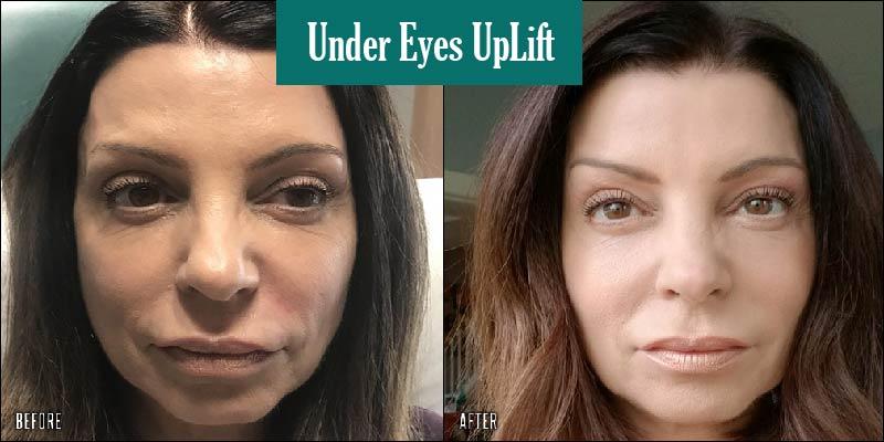 before-after-ultra-v-lift-undereyes_orig