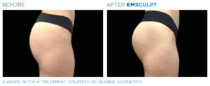 Emsculpt Buttocks 5